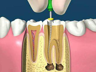 http://kidental.ro/wp-content/uploads/2018/01/endodontie-320x240.jpg