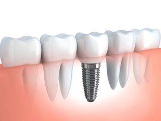 http://kidental.ro/wp-content/uploads/2018/01/implantologie-320x240.jpg