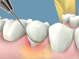 http://kidental.ro/wp-content/uploads/2018/02/parodontologie-crisdent-clinic-2-300x237-320x240.jpg